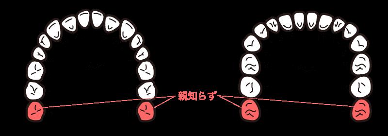 親知らずの歯並び図